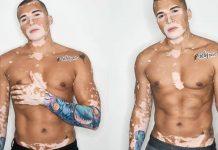 brasileiro-com-vitiligo-vence-depressao-vira-modelo-e-ganha-o-mundo
