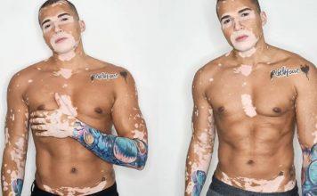 brasileiro com vitiligo vence depressao vira modelo e ganha o mundo 356x220 - Início